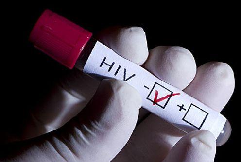 hiv en homosexuales