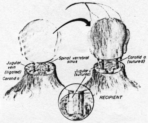 dibujo de transplante de cabeza de un mono