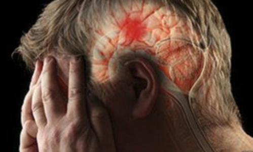 cerebro de un hombre