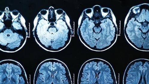 cerebro y pornografia