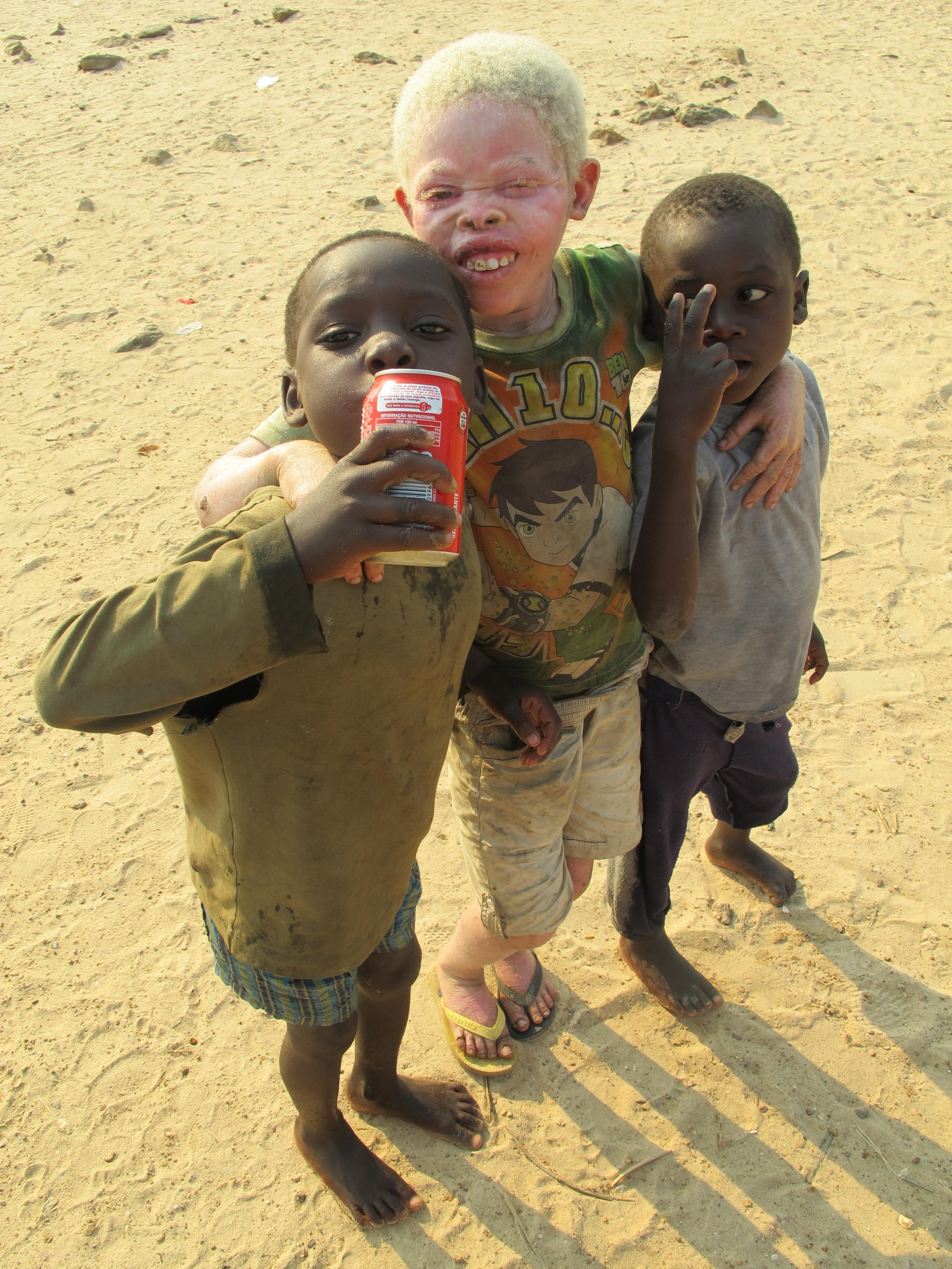 Ser ALBINO en África es un pasaporte a ser Asesinado o Mutilado