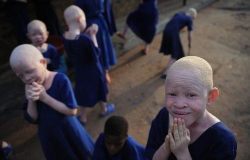 albinos vetidos de azul en tanzania