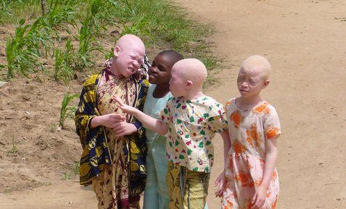 ninios albinos africanos