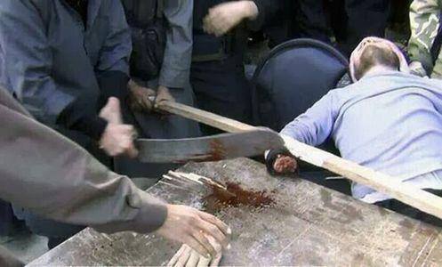 amputacion de una mano de acuerdo a la sharia