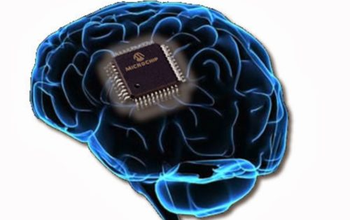 microchip cerebral