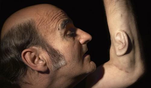 implante de una oreja en el brazo